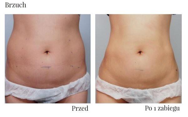 przed i po liftingu