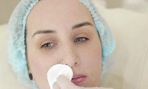 Kwas hialuronowy jako metoda walki z doliną łez oraz głębokimi bruzdami nosowo wargowymi