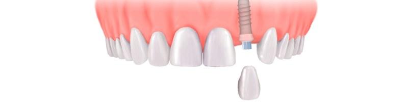 Korona na implant zębowy